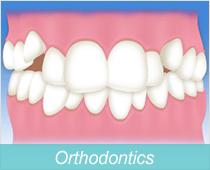 歯並びの治療・矯正歯科