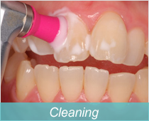 PMTC、歯のクリーニング
