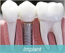 インプラント治療、口腔外科